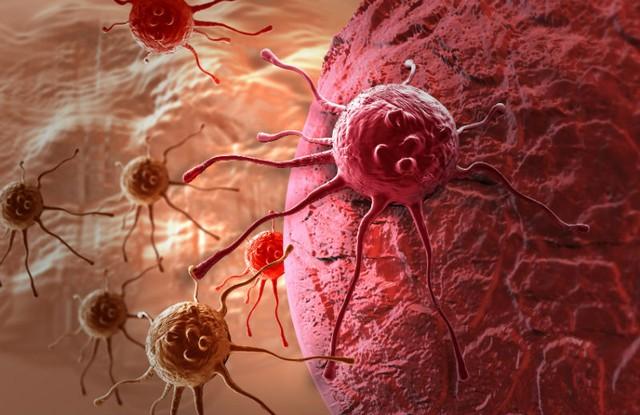 Kết quả hình ảnh cho các bệnh ung thư thường gặp
